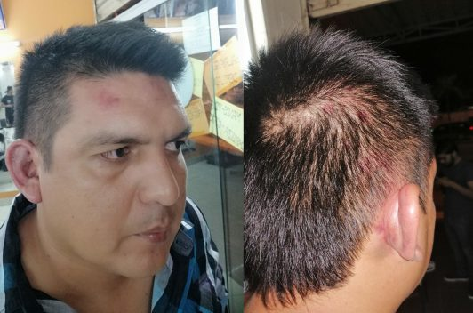 Periodista deportivo boliviano fue agredido